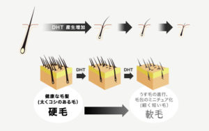 DHTの解説